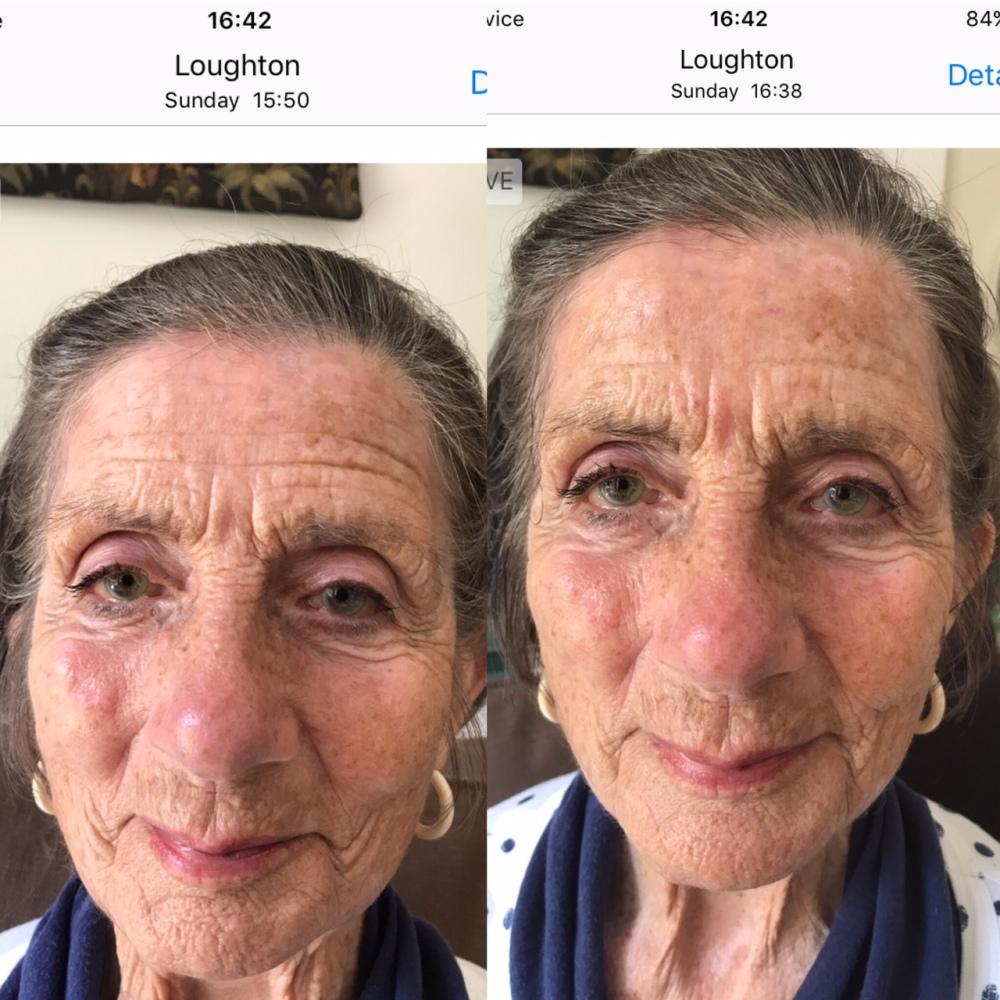 nan wrinkles.JPG